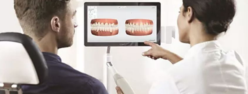 caméra intra orale smile care